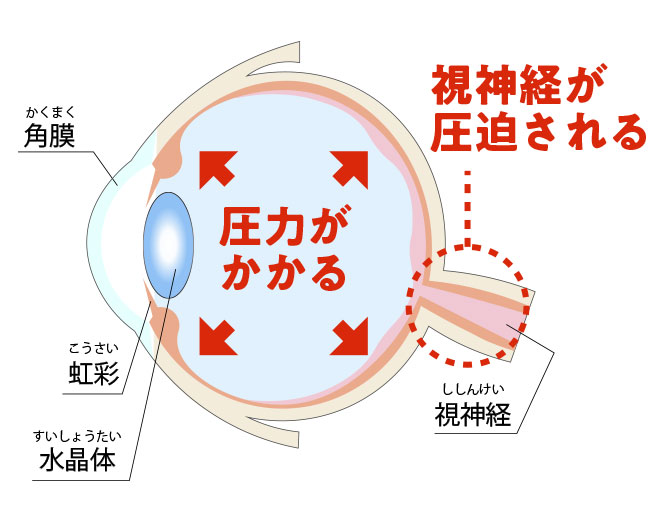 緑内障の眼の断面図