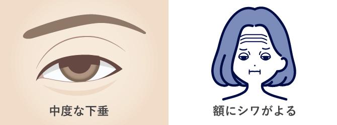 中等度の眼瞼下垂