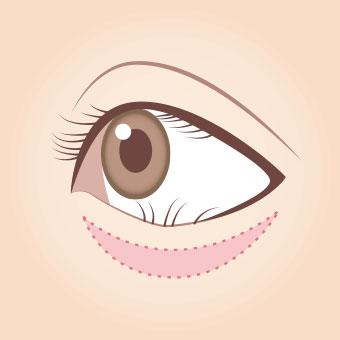 眼瞼内反症手術(皮膚切開法)1