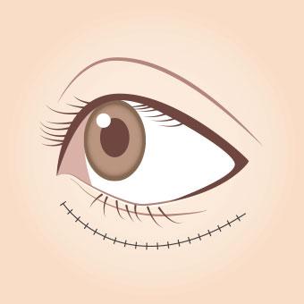 眼瞼内反症手術(皮膚切開法)2
