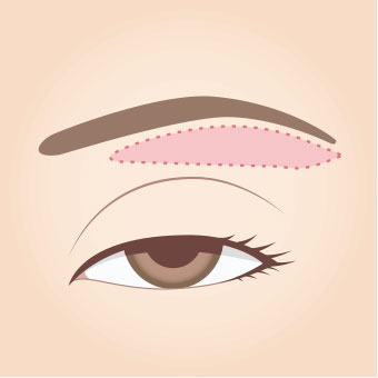 眉毛下切開法1