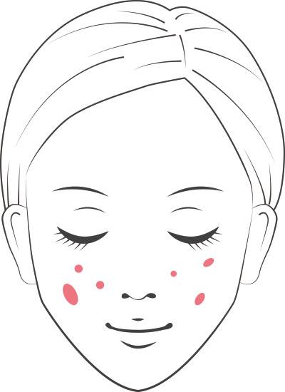 老人性色素斑(丸いしみ)の図
