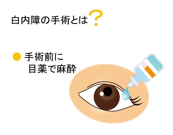 手術前に目薬で麻酔