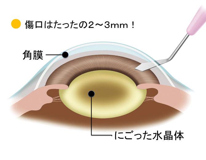 眼球切開の図