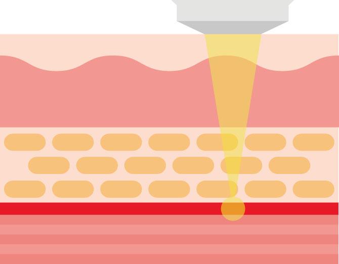HIFU(高密度焦点式超音波)治療の断面図