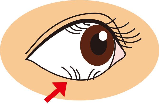 下睫毛が眼球を傷つけるイラスト