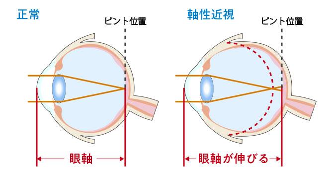 正常な眼の断面図と軸性近視の眼の断面図