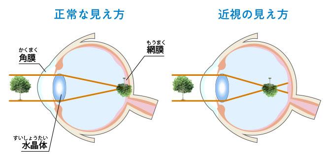 正常なものの見え方と近視の見え方の断面図