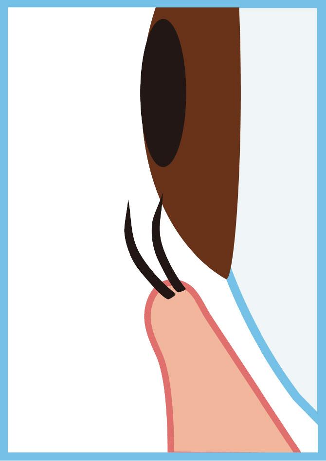 睫毛内反症のイラスト
