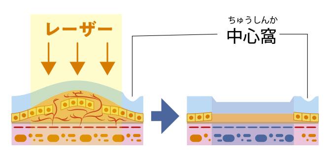 レーザー光凝固の断面図