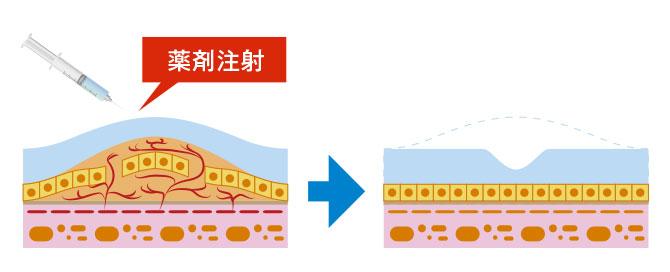 抗血管新生治療