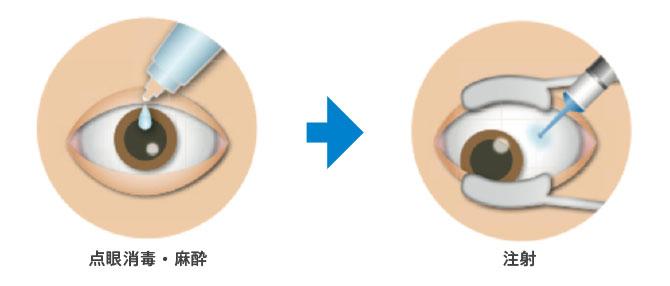 点眼消毒・麻酔、注射の図