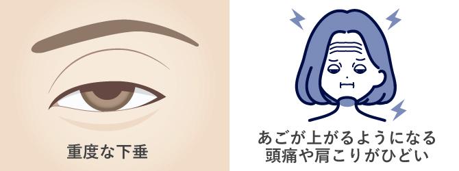重度の眼瞼下垂