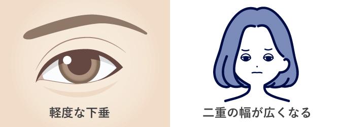 軽度の眼瞼下垂