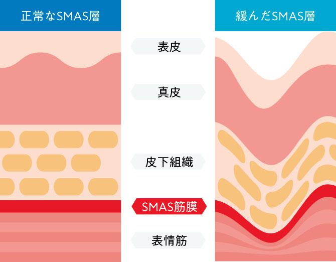 正常なSMAS層と緩んだSMAS層の断面図